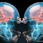 Concussion discussion
